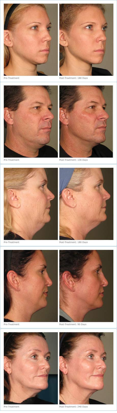 Rox Spa Ultherapy Before and After pictures