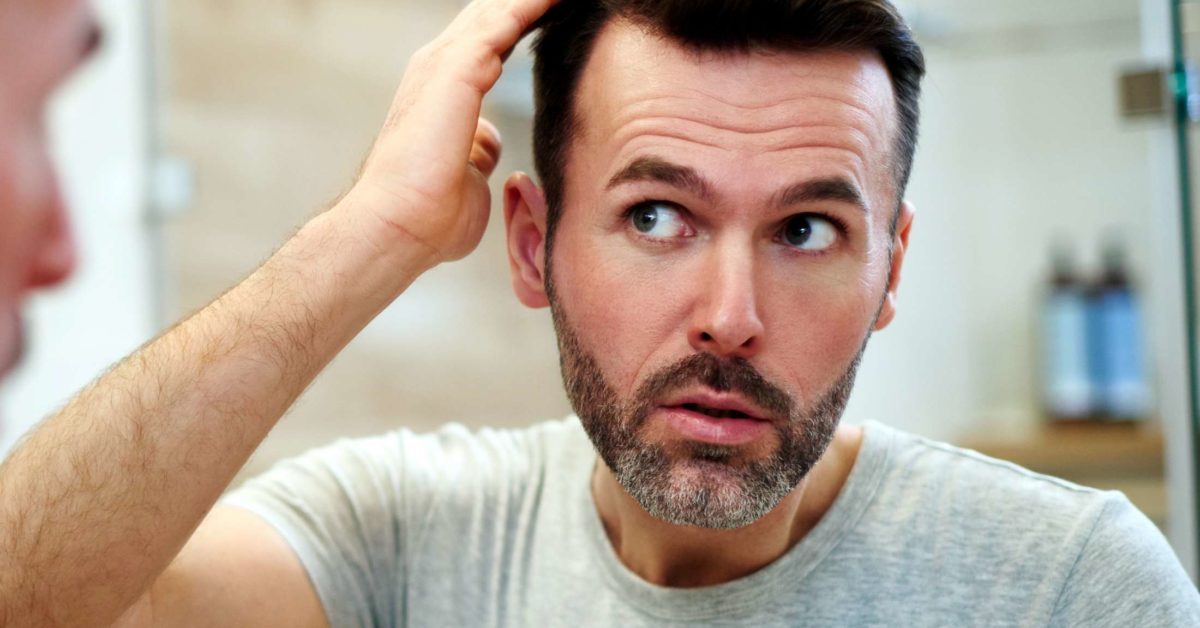 Have Been Seriously Tortured By The Hair Loss Problem? Check Out To Understand The Reasons and Resolutions