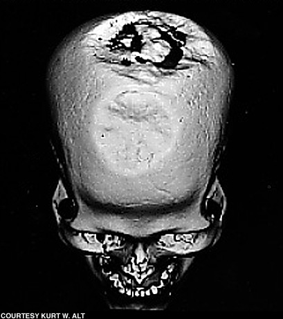 Cranio di Ensisheim (Francia) circa 5100 a.C.