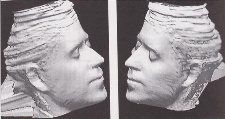 """Ricostruzione del volto di Cangrande, tre quarti destro, tre quarti sinistro (Chirurgia Maxillo – Facciale, Policlinico Rossi, Verona; Department of Forensic Medical Science, London, Glasgow). Si può notare che la mandibola è piuttosto prominente ed il naso """"importante"""""""