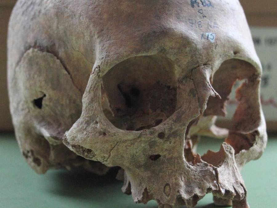 Uno dei teschi del sito di Repton, che una nuova analisi suggerisce essere una fossa comune di guerrieri vichinghi che invasero l'Inghilterra nel IX secolo (Foto: Cat Jarman)