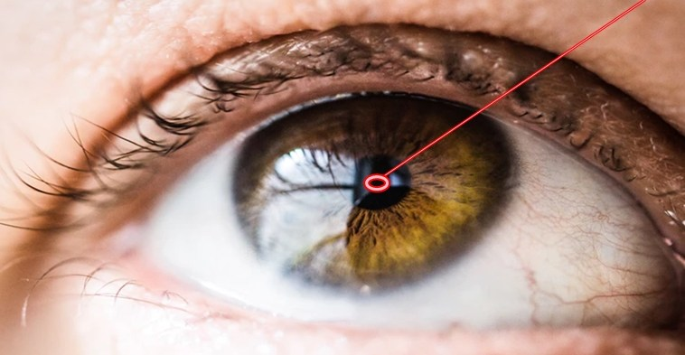 trasplantes de cornea