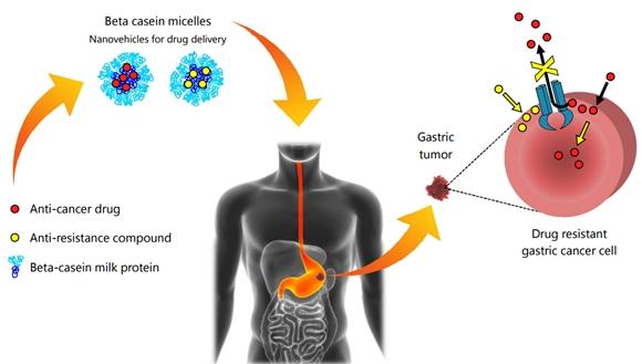 tumores gástricos