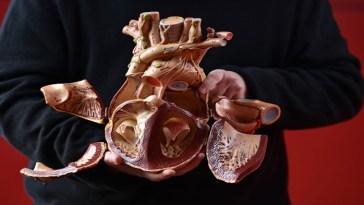 tejido cardíaco