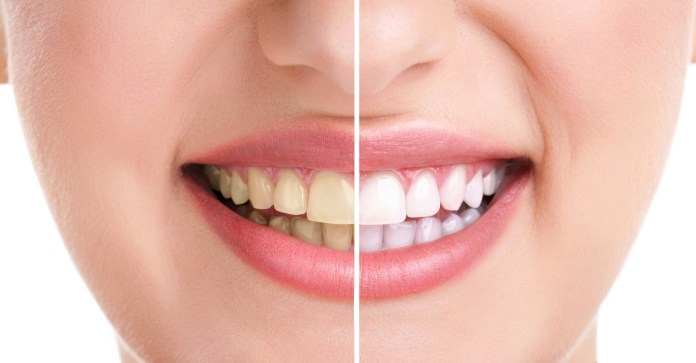Natural ways to avoid yellow teeth