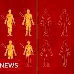 Coronavirus vaccine: What are human problem trials? – BBC Information
