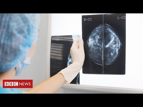 Enormous fall in most cancers sufferers seeing specialists throughout coronavirus pandemic  – BBC Information