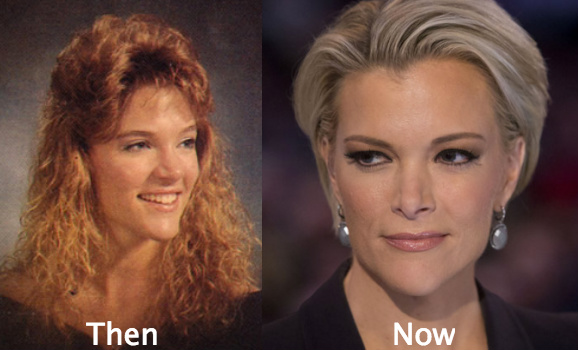 Image result for megyn kelly before surgery