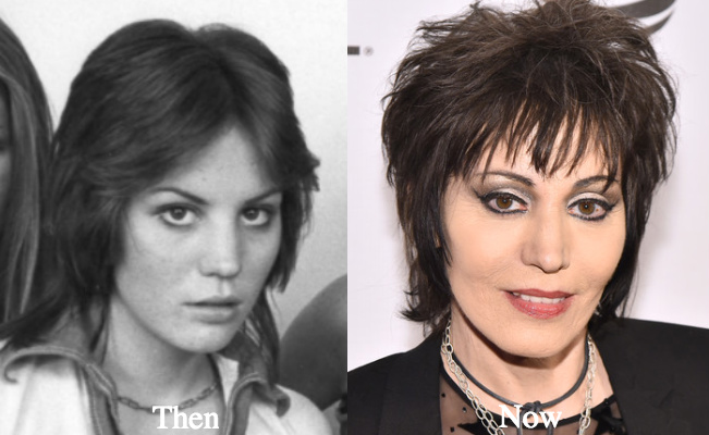 Joan Jett Plastic Surgery Before And After Photos Latest