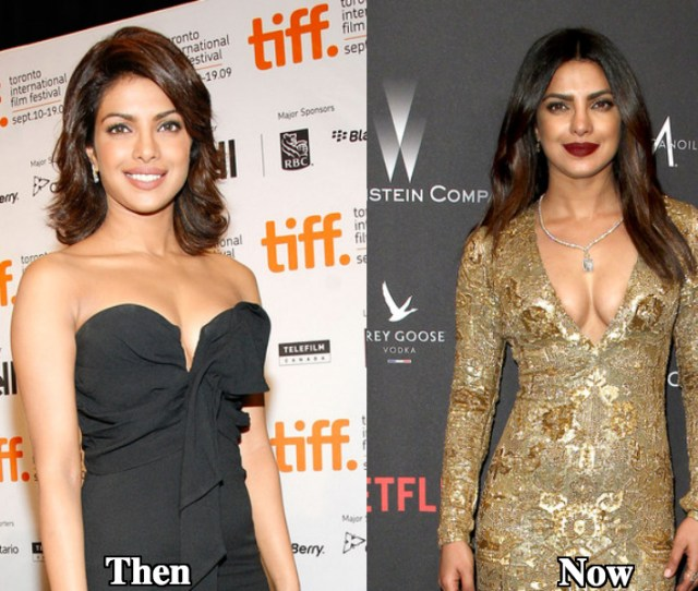 Priyanka Chopra Breast Augmentation Before And After