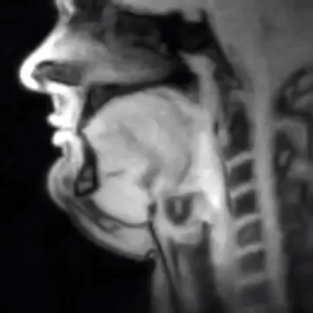 real-time-mri Amazing MRI Footage Revealing Voluntary and Involuntary Human Body Movements in Real Time Random