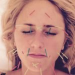 Acupuncture Facial Therapy | Launchfit™ by Clinicube®