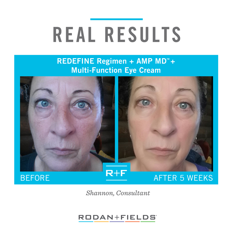 Redefine Before-After +AMP MD + Eye Cream