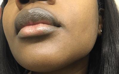 My Top 5 Tips For Improving Hyperpigmentation on Dark Skin