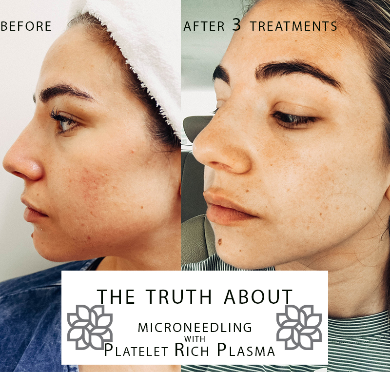 My Final Review of Microneedling with PRP: After 3 Treatments