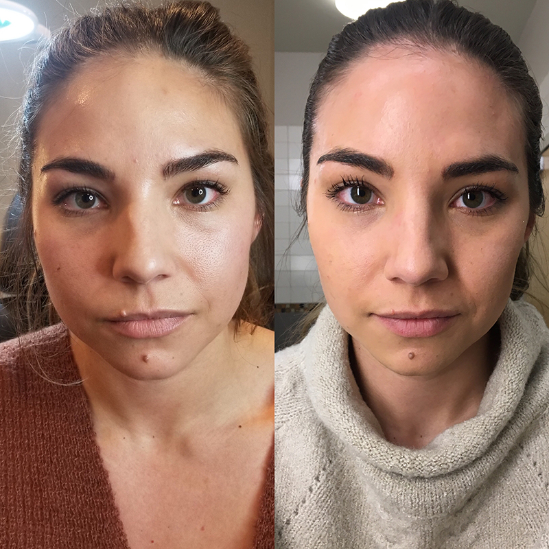 My Experience Receiving Botox for TMJ | Lauryncakes