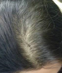 Los medios para la colocación de los cabello para los hombres del precio