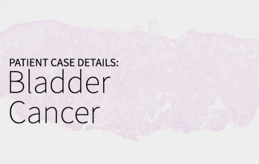 Ms. KZ, 44 with Stage IV Bladder Cancer