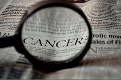 Prospect KY Dentist | Oral Cancer Risk Factors