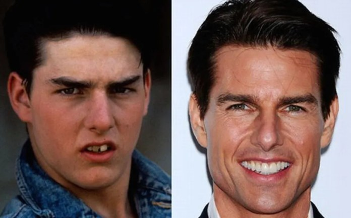 4 celebrities who changed their smiles with the dentist ¡Shocking!