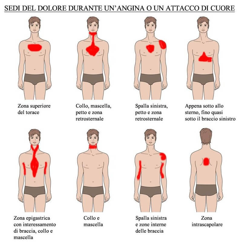 Infarto-sintomi