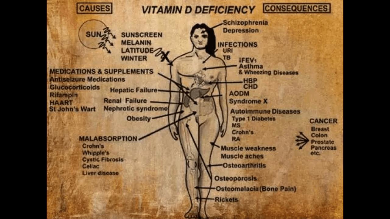 7 Sintomi che indicano una carenza di Vitamina D