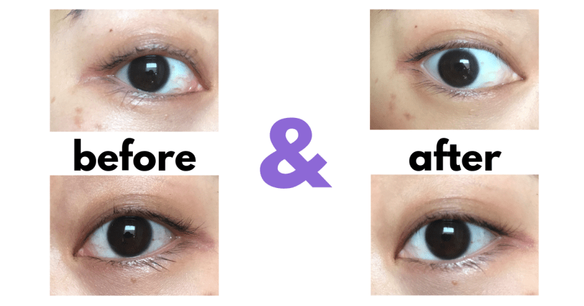 Lumify eye drops review before and after photos- LA Vida Color