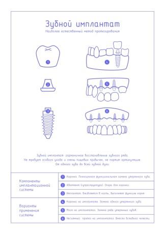 Что такое имплантат лайт