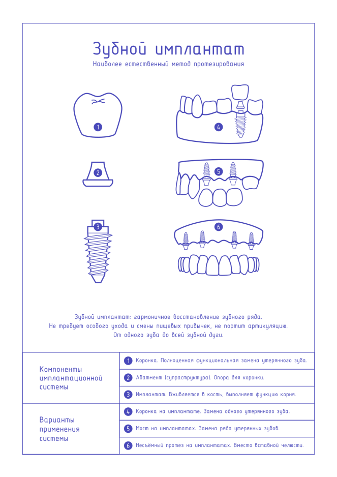 Плакат для стоматологии Зубной имплантат лайт