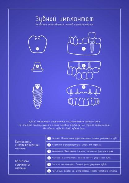 Стоматологический плакат Зубной имплантат блюпринт