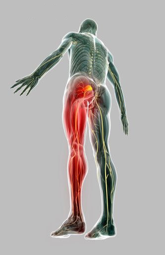 What Is Sciatica Lawrence Park Health And Wellness Clinic