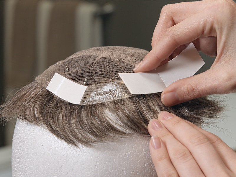9 Common Questions About Non Surgical Hair Replacement Systems