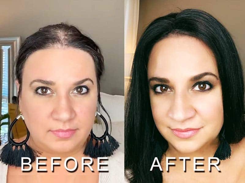 Hormonal Hair Loss Is No Longer Your Nightmare! - Here's A Quick Cure