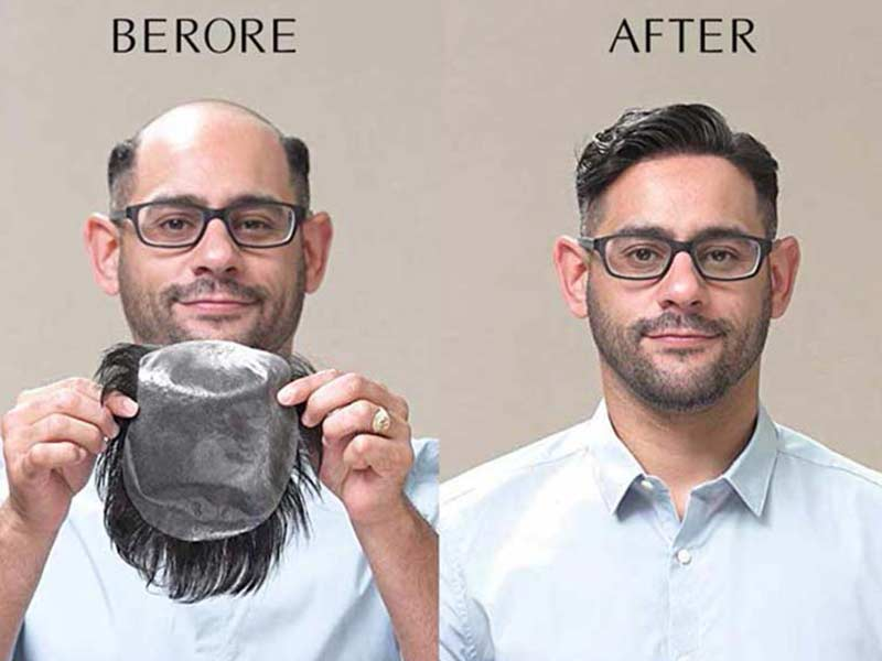 Toupee Before And After: Look At Its Pros & Cons
