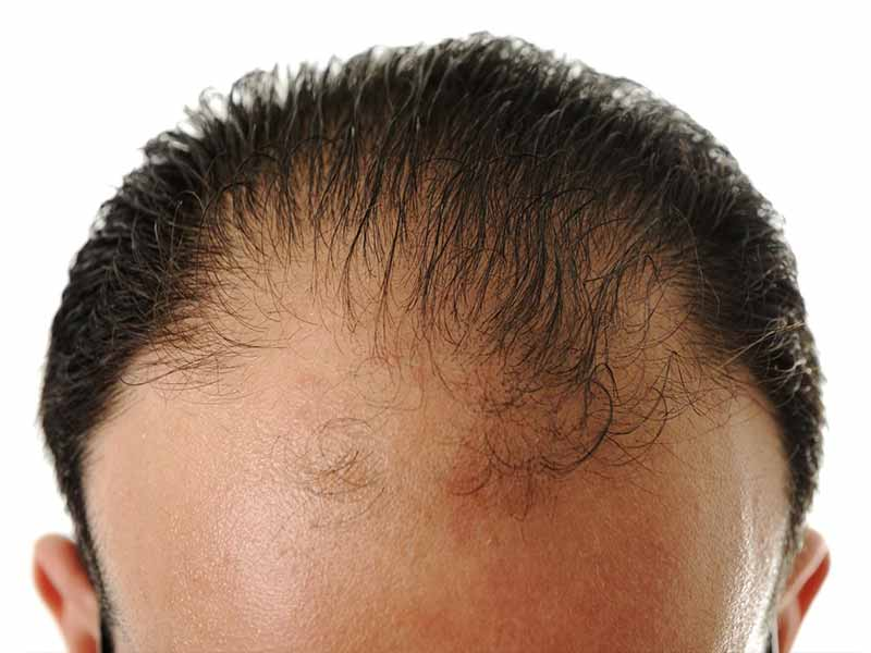 Male Pattern Baldness: Definition, Causes, And Solutions
