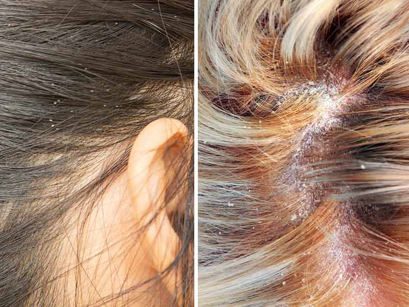 Why Is My Scalp So Itchy & How To Treat It?