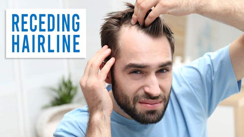 Receding Hairline - Are You Suffering From It?