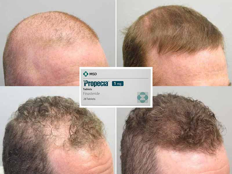 Finasteride For Hair Loss - Is It A Viable Solution?