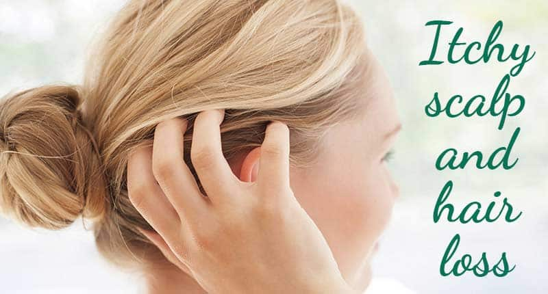 Itchy Scalp And Hair Loss - Reveal The Relation!