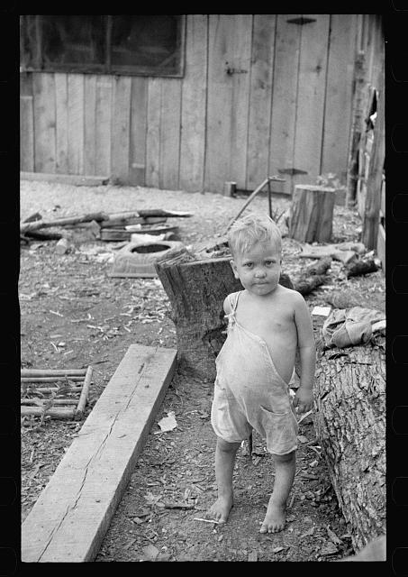 Sharecropper's child suffering from rickets and malnutrition, Wilson cotton plantation, Mississippi County, Arkansas
