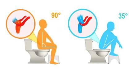 Utiliser un tabouret de toilette contre les maux de ventre