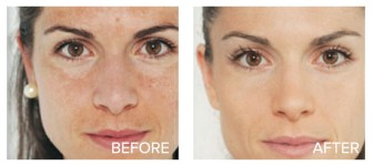 Bright Skin Masque Before and After Image