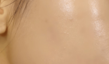 Jurlique Blemish Cream - Le Reve Spa - After