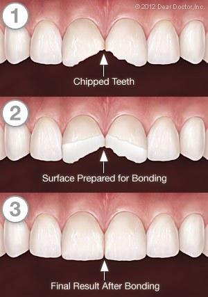 tooth-bonding