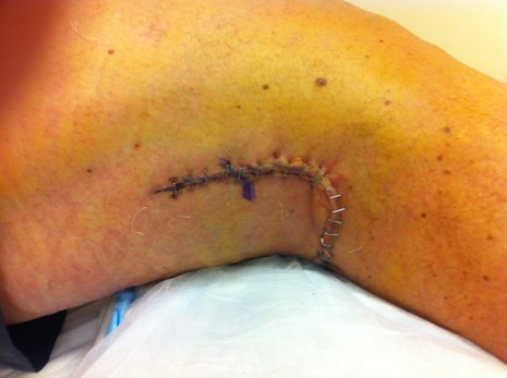 Back of knee incision closed with staples