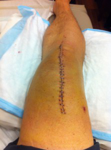 Knee with front incision closed with staples