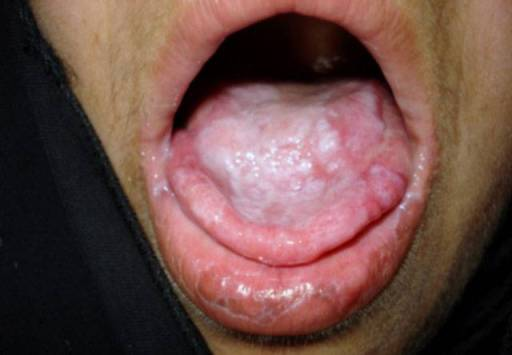 Can i catch gonorrhea from oral