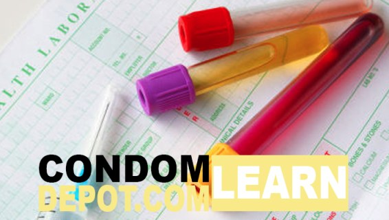 CondomDepot-Learn-HI-stdtest