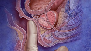 Probing the Prostate: Source of Pleasure and Problems