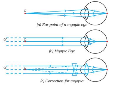 myopia and correction